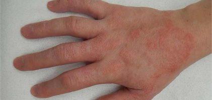 Qu'est-ce que la dermatite de contact ? et comment s'en débarrasser?